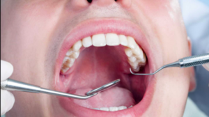 Dente Siso: 7 mitos e verdades