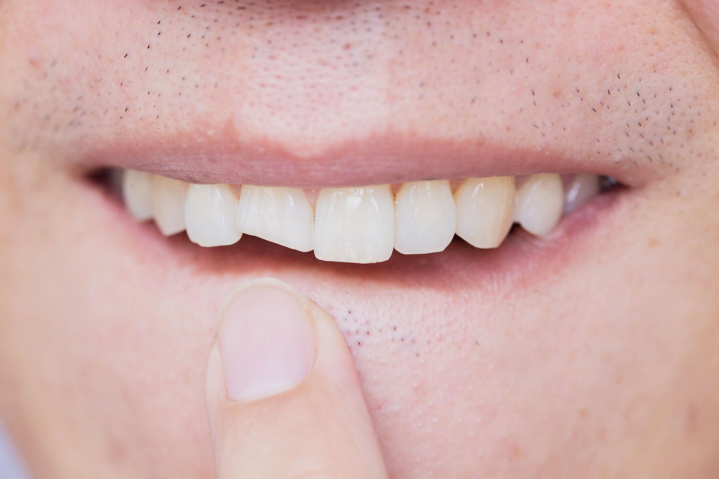 Dente quebrado: confira 4 passos que você precisa seguir.