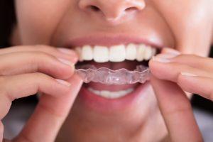 Clareamento dental com moldeiras: tudo o que você precisa saber