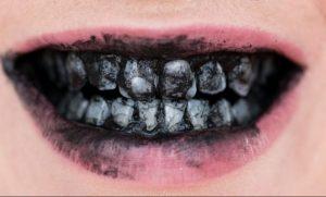 Carvão para os dentes: nem tudo é o que parece ser