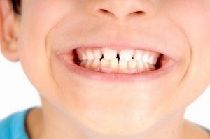 Manchas brancas nos dentes dos seus filhos? Não se desespere!