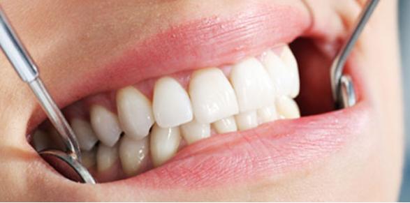 Como saber se preciso extrair um dente?