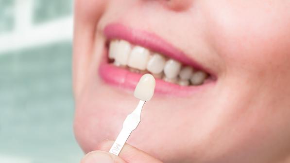 Lente de contato dental: Quanto tempo dura?