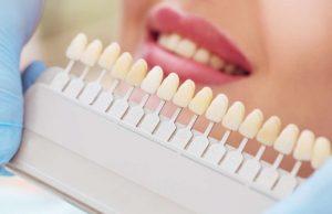 Lentes de contato dental x faceta de resina: quais as diferenças?
