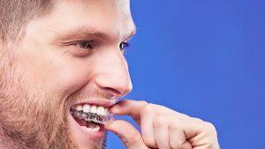 GOU Correct: Como cuidar do seu alinhador e o que você pode comer