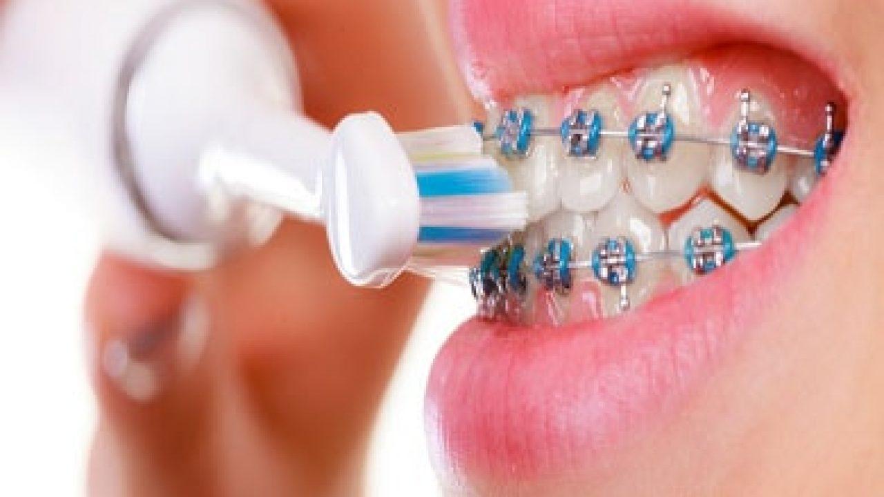 pessoa com aparelho fixo escovando os dentes