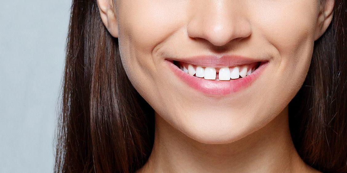 mulher sorrindo com diastema frontal