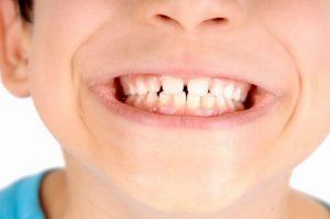 Manchas brancas nos dentes: como surge e como tratar a fluorose dentária
