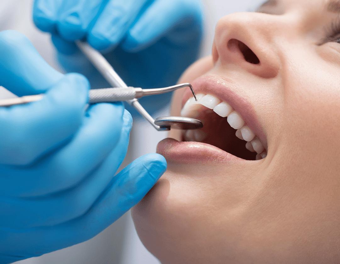 Dentista realizando a limpeza de tártaro