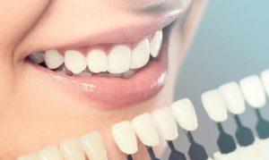 A faceta dental pode substituir o aparelho ortodôntico?
