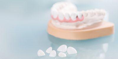 lente-de-contato-dental-desvantagens-post-blog